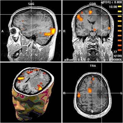 ct scan hersenen waarom